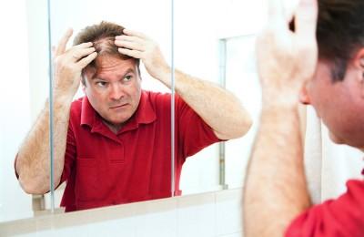 Cura Alopecia e Trapianto Capelli: oltre la chirurgia grazie ai nuovi protocolli della Medicina Rigenerativa in associazione a cure mirate