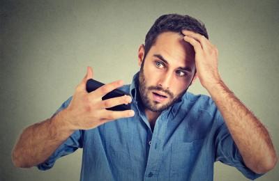 Diradamento dei capelli: affrontiamo il problema!