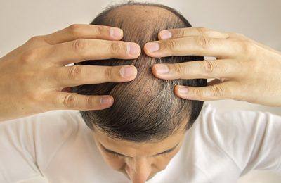 Trapianto di capelli sì o no? La calvizie non si può risolvere senza una cura avanzata.