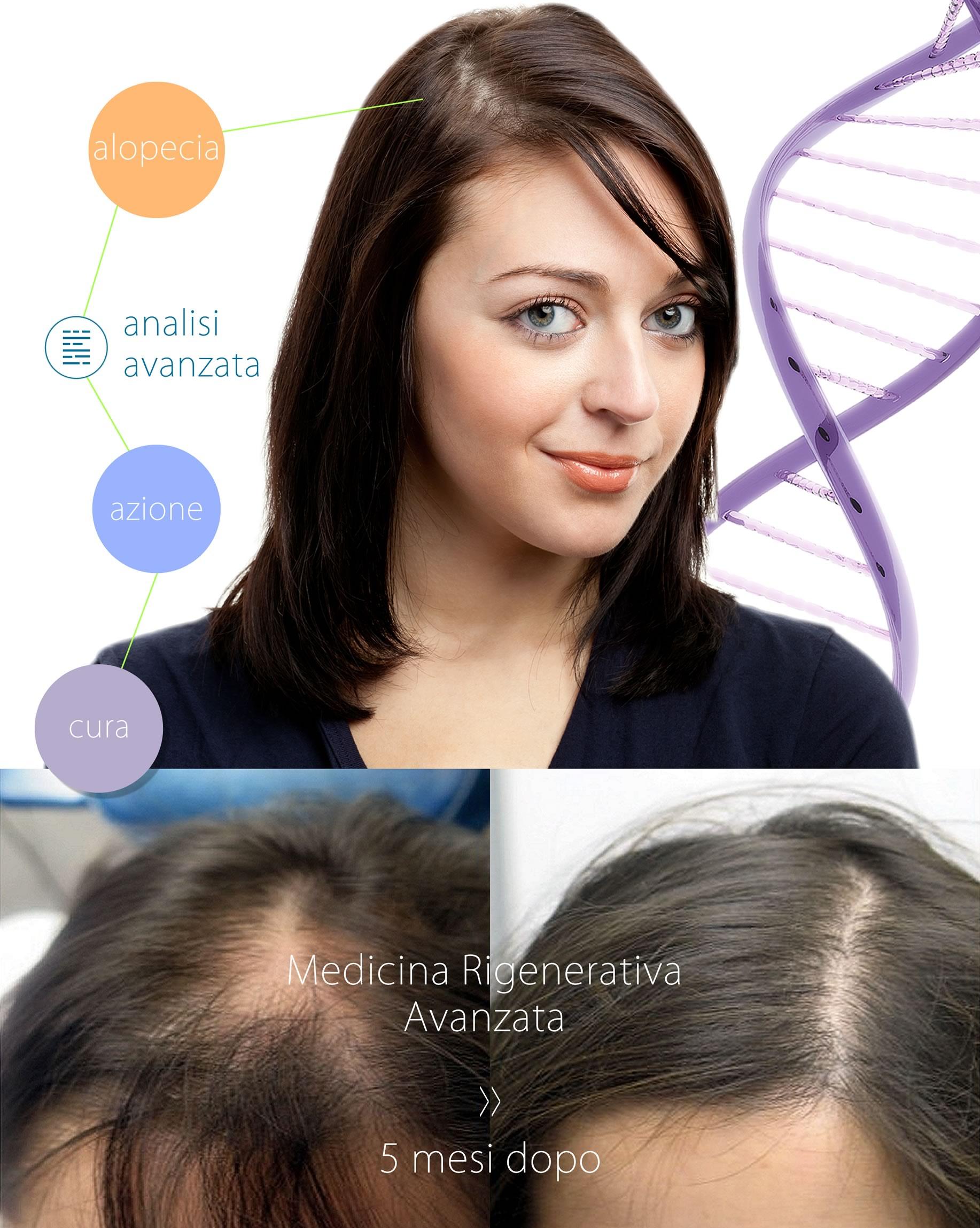 Donne E Calvizie Cosa Fare Contro L Alopecia Femminile
